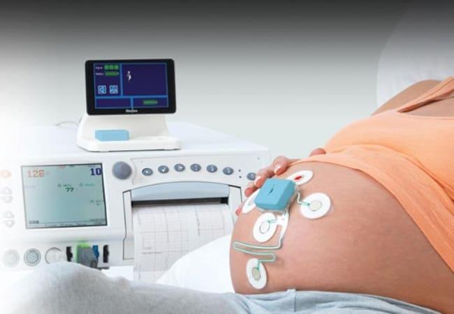 КТГ плода при беременности