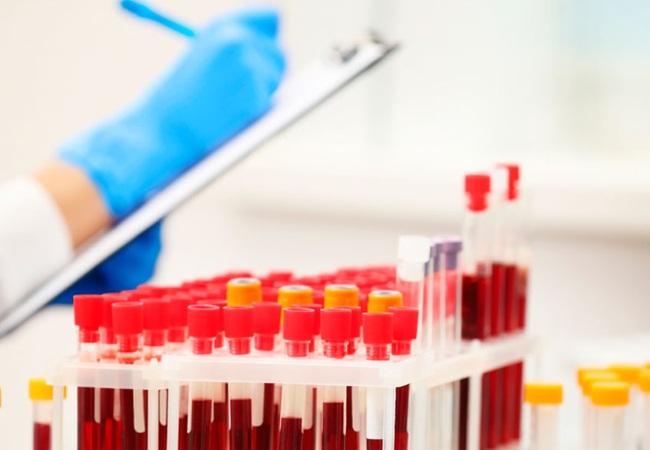 Биохимия крови в Москве