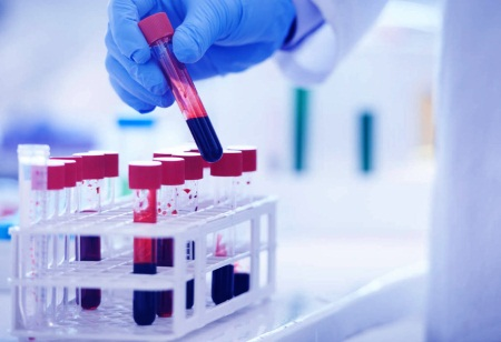 Сдать кровь на гормоны щитовидной железы