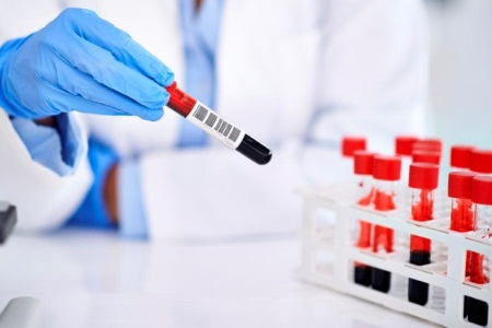 Анализы крови на остеопороз