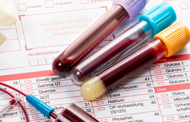 Анализ на биохимию крови