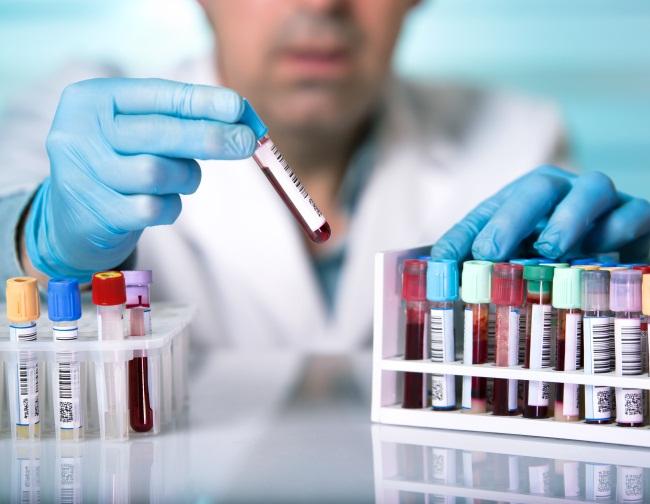 Анализы на половые инфекции