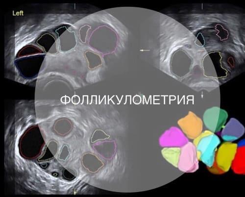 Фолликулометрия
