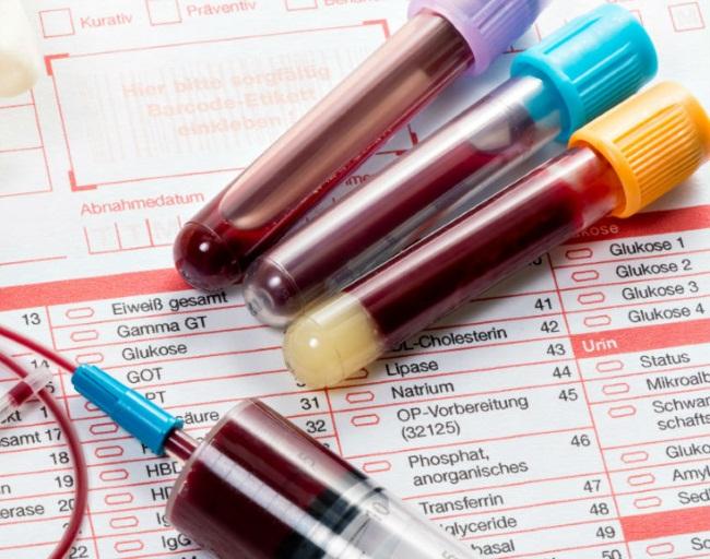 Анализ на витамин В12
