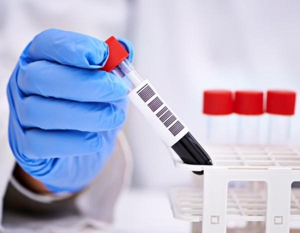 Анализы на мочевую кислоту