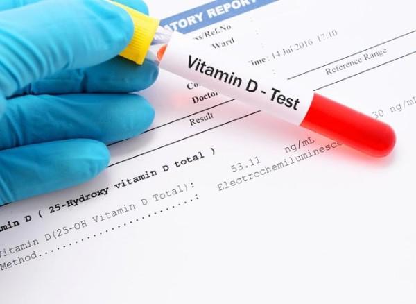 Анализы на витамин Д