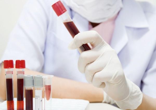 Анализ на антитела IgM