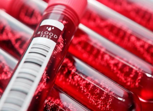 Кровь на общий билирубин