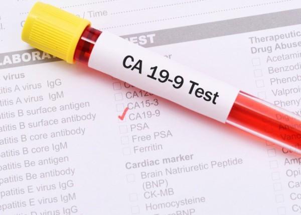 Сдать анализы на CA 19-9