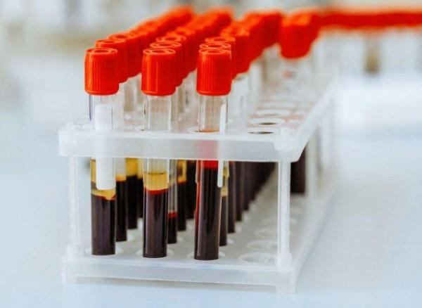 Сдать анализы на Триглицериды (Triglycerides)