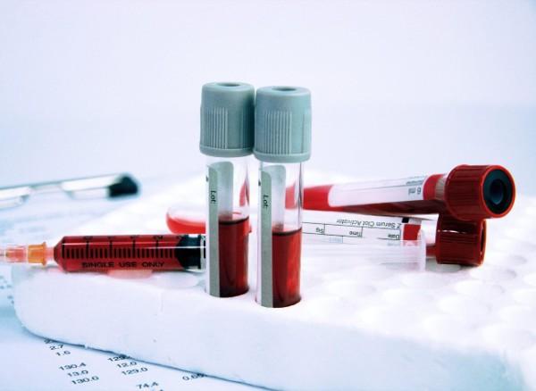 Сдать анализы на возбудитель эхинококкоза