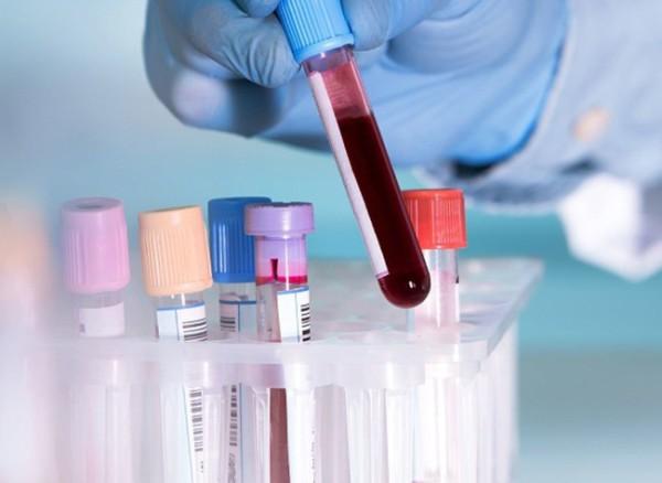 Сдать анализы на возбудитель аскаридоза